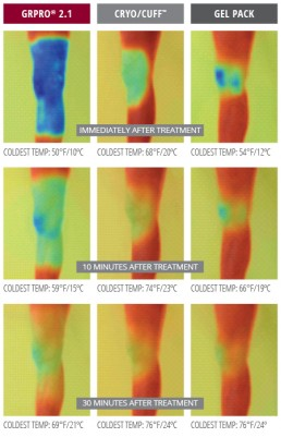 thermal imagery comparison